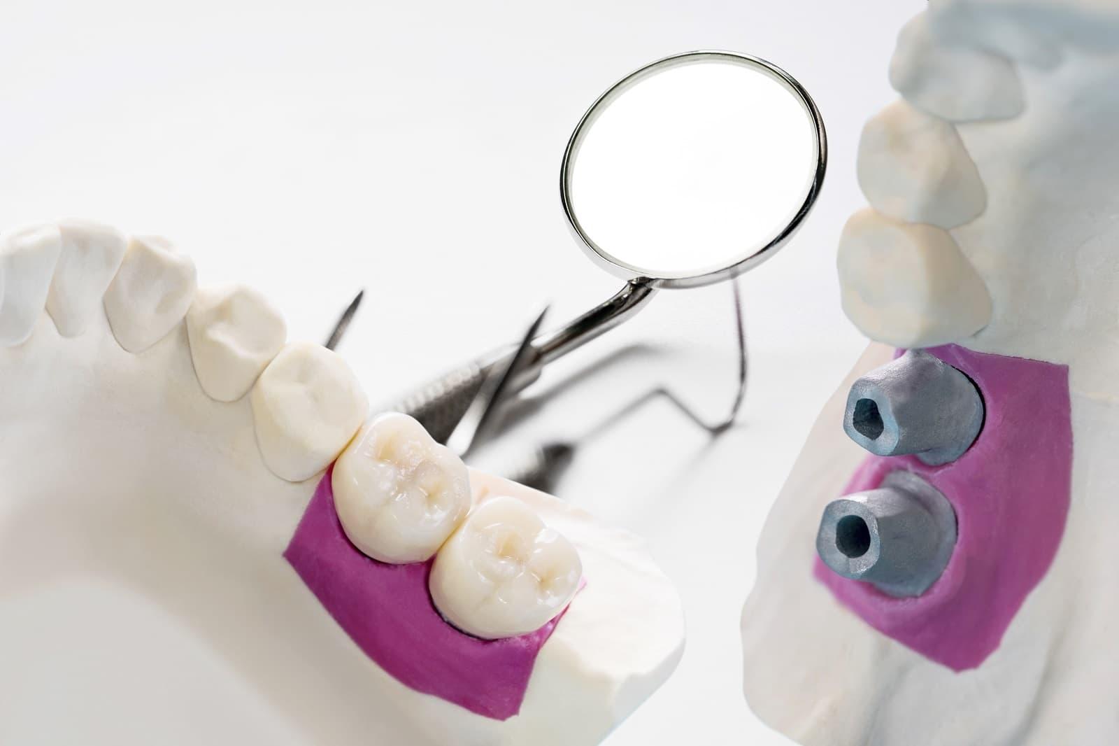 Portada permiso laboral por implante dental